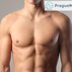 Breast Reconstruction in Prague