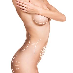 Body Implants PMI