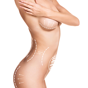 Body Implants PMI