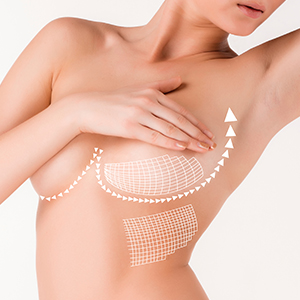 Breast Lift in Prague