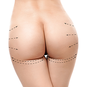 Buttock Implant PMI