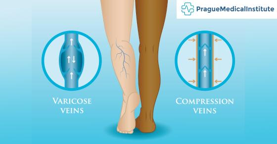 compression stocking veins
