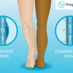 compression stocking veins