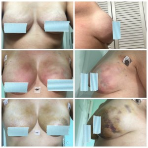 fat grafting 3 pic collage