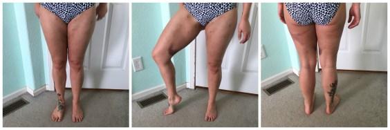 fat grafting thigh week 2