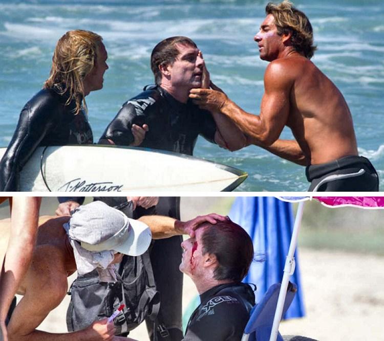lesão ocular surf