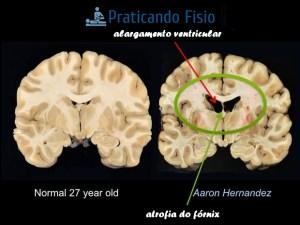 https   www.theguardian.com sport 2017 nov 09 aaron-hernandez-cte-brain-damage-photos eec19f4c5033e