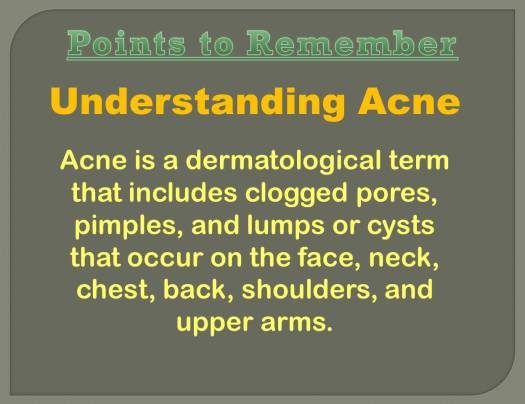 acne myths_1