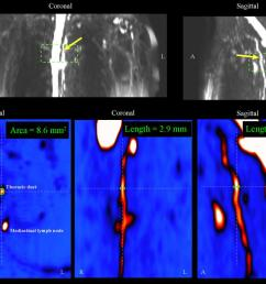 and functional magnetic resonance imaging mri methods to patients with mild and moderate breast cancer related lymphedema bcrl for the first time to  [ 1030 x 800 Pixel ]