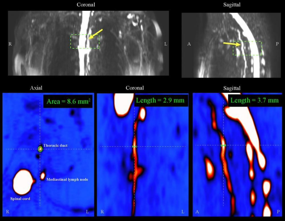 medium resolution of  and functional magnetic resonance imaging mri methods to patients with mild and moderate breast cancer related lymphedema bcrl for the first time to