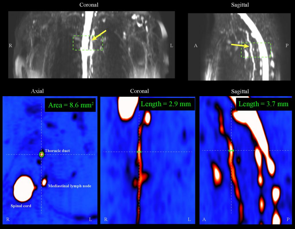 hight resolution of  and functional magnetic resonance imaging mri methods to patients with mild and moderate breast cancer related lymphedema bcrl for the first time to