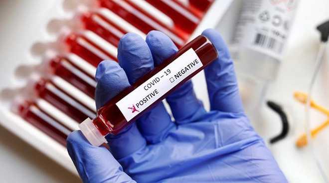 COVID-19: Over 180 pregnant women test positive in J&K