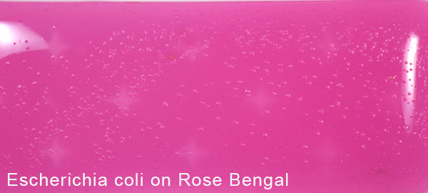 Escherichia coli on Rose Bengal