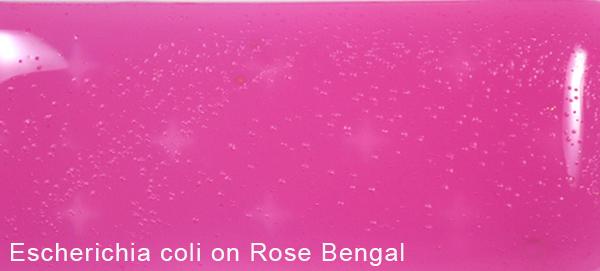 Escherichia coli on Rose Bengal