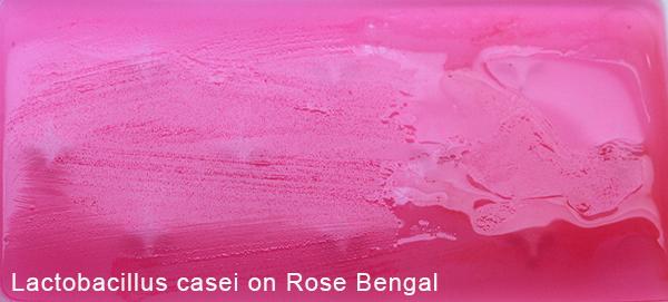 Lactobacillus casei on Rose Bengal