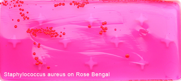 Staphylococcus aureus on Rose Bengal