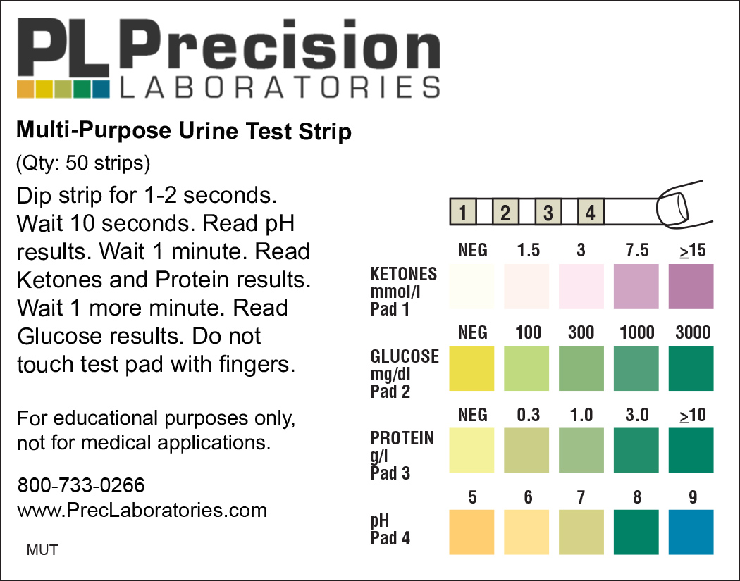 Chem strip urine test interpretation pic 162