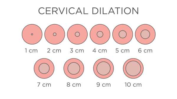 Cervical Dialation Chart