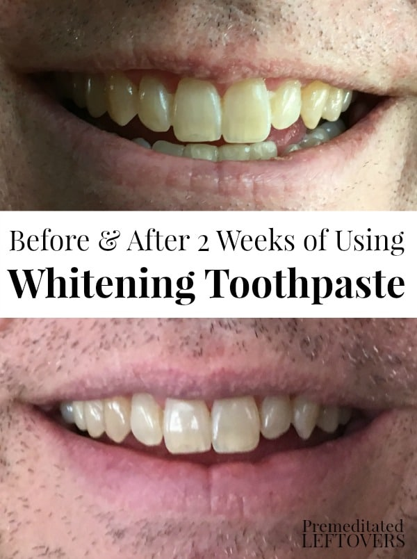 Should You Brush Your Teeth Before Using Whitening Strips : should, brush, teeth, before, using, whitening, strips, Whiten, Teeth, Without, Using, Whitening, Strips, Trays