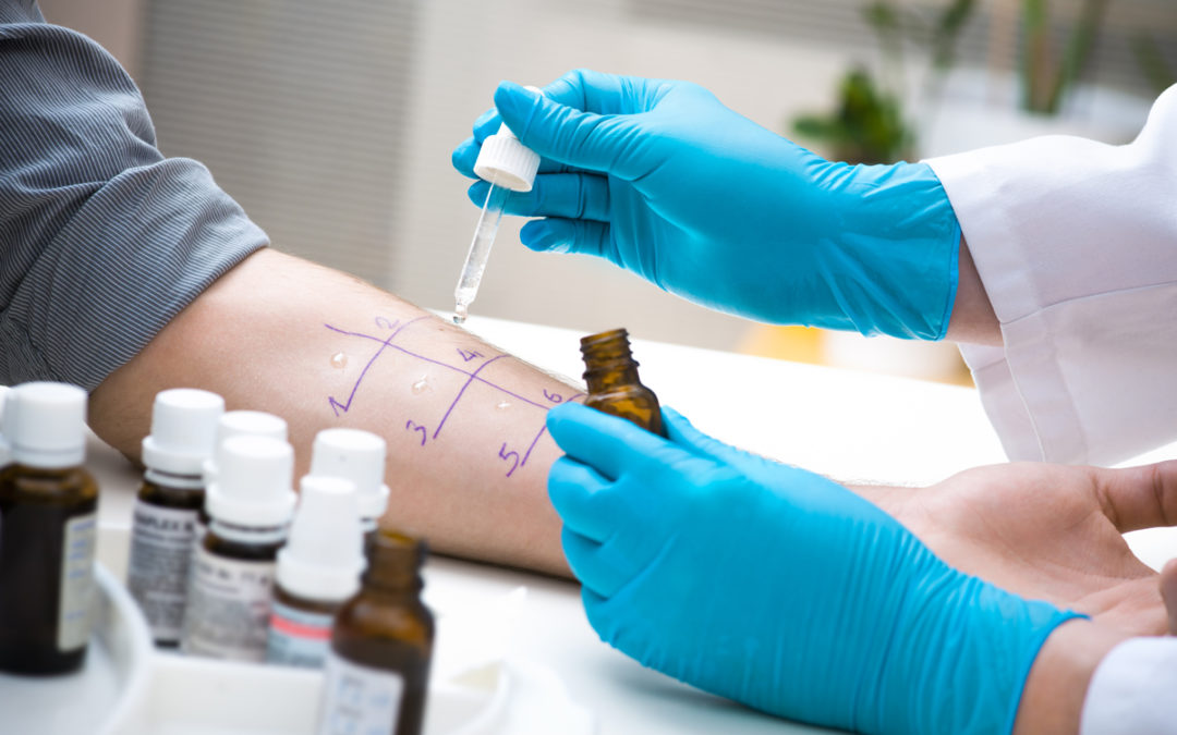 What Is An Allergy Skin Test?