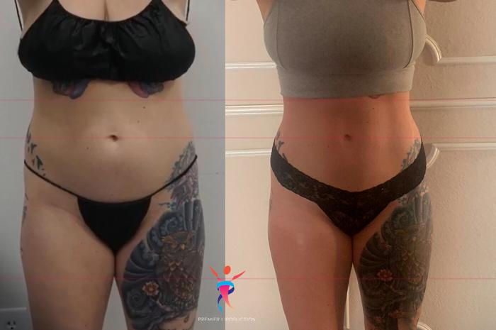 360 liposuction front