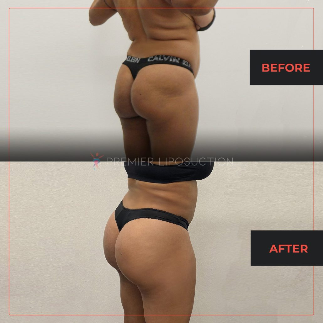 before and after woman's butt lift fat transfer