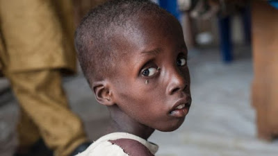 BREAKING NEWS: 49,000 Children may die in Northeast Nigeria this Year… – UNICEF