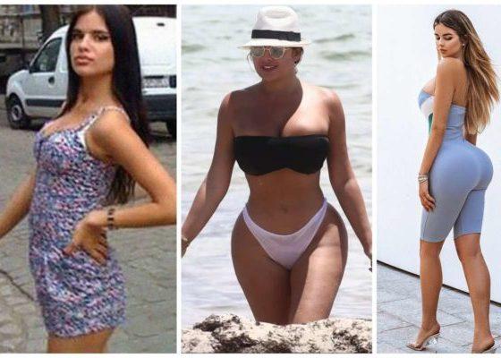 photos of Russian model Anastaskia Kvitko who got her body 'Kardashianed'