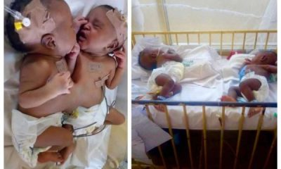 Nigerian doctors separate conjoined twins in Abuja