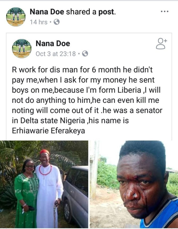 Liberian man accuses Nigerian senator of brutalizing him after he asked for his pay, shows photo of his injuries