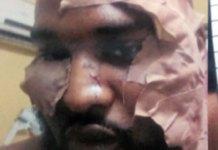 Two men arraigned for stabbing Wizkid's bodyguard