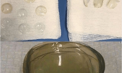 Doctors find 27 contact lenses stuck in 67-year-old woman's eye