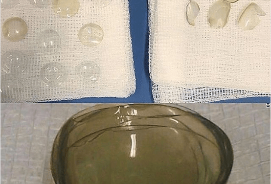 Doctors find 27 contact lenses stuck in 67-year-old woman's eye (Photo)
