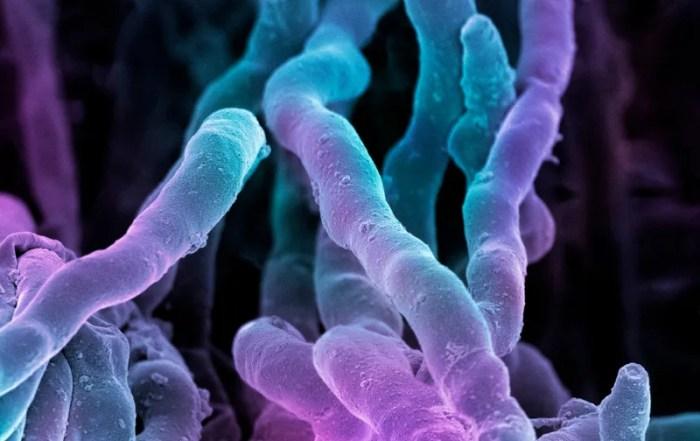 PSP fibre protection against microbe defense