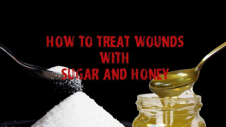 Prepper's Will - Treating wounds with sugar and honey