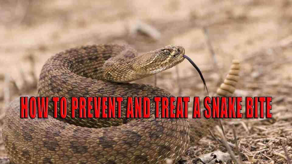 How to Prevent and Treat a Snake Bite