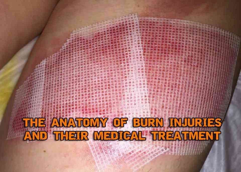 The Anatomy Of Burn Injuries And Their Medical Treatment