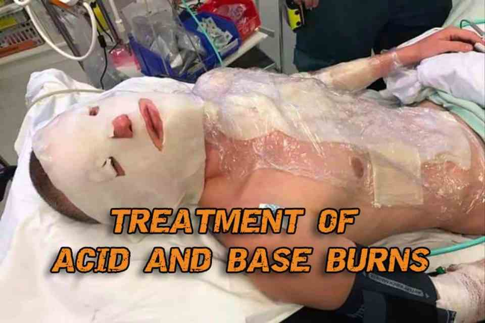 Treatment Of Acid And Base Burns