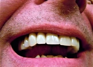 Mund Zähne