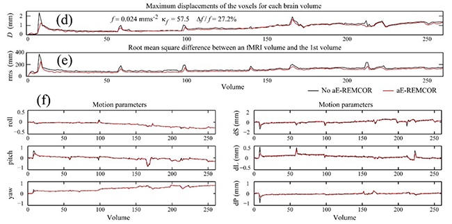 EEG-assisted retrospective motion correction for fMRI (E-REMCOR) and automated implementation (aE-REMCOR) - Fig. 2 continued: The automatic results of aE-REMCOR with identified motion ICs in a scan with severe rapid head movements. (d) The maximum displacement of the voxels (D) for each brain volume. (e) The root mean square difference (rms) between an fMRI volume and the 1st volume. (f) The rotation angles roll, pitch, yaw and the displacements along the superior (dS), left (dL) and posterior (dP) directions calculated by AFNI 3dvolreg. (g) The ∆TSNR plots on the slices of the brain along the axial direction without volume registration (upper plot) and with volume registration (lower plot). In (d) – (f), the results with and without aE-REMCOR are respectively plotted in red and black lines. Reproduced from Wong et al. (2016) NeuroImage [2].
