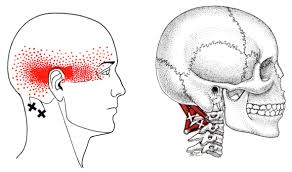 Muscles causing headaches - Suboccipital Muscles pain pattern