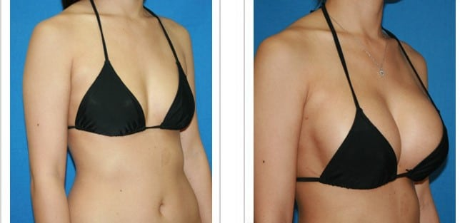 breast-augmentation-before-after