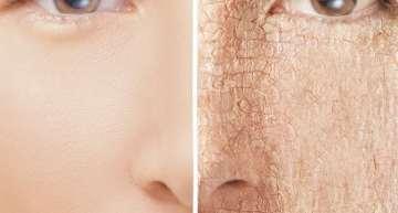 6 schnelle und einfache Mittel gegen trockene Haut