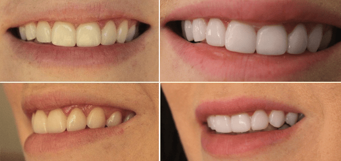 Smile Brilliant Before and After Whitening