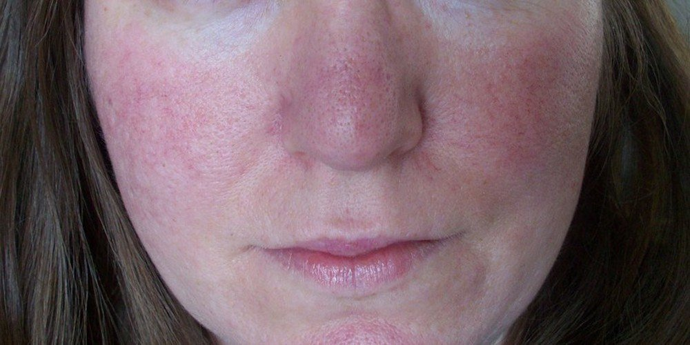 how to reduce redness on your face