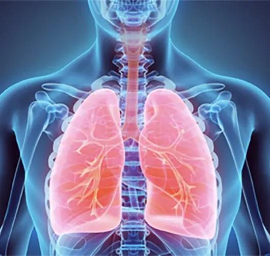 vätska i lungorna övrigt