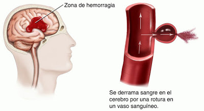 stroke-hemorragico