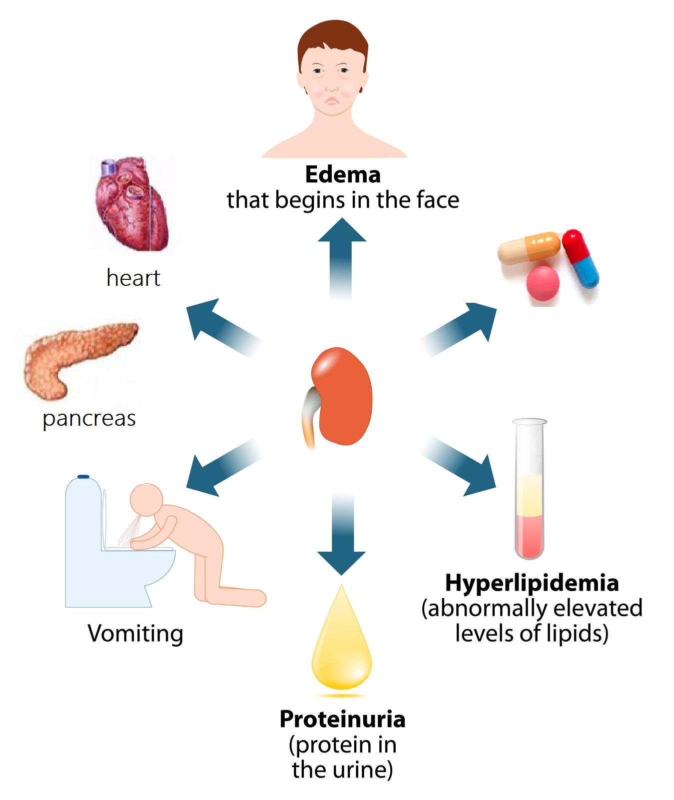Foods For Optimal Kidney Health