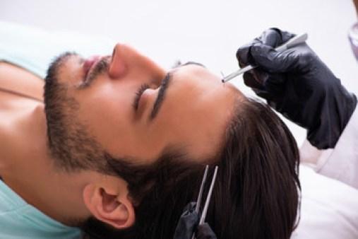 Trapianto dei capelli in sicurezza