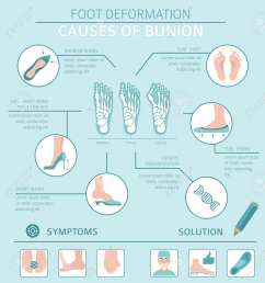 foot deformation as medical desease infographic causes of bunion vector illustration stock vector  [ 1237 x 1300 Pixel ]